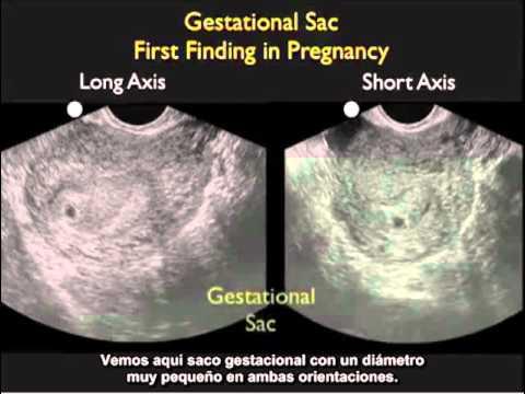 Intrauterine Pregnancy  Part 1 Spanish