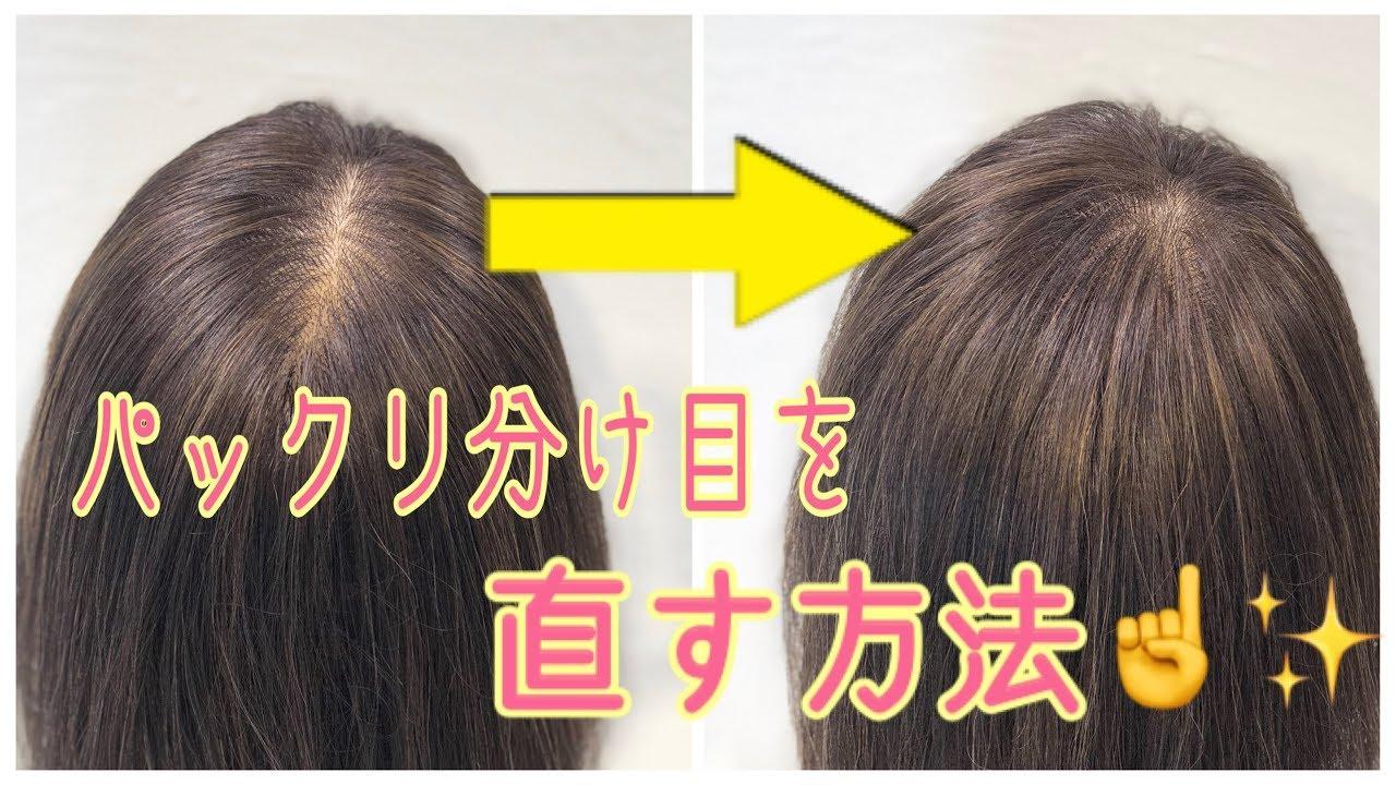 女性の薄毛】分け目パックリはげを改善!目立たなくする方法|JGS