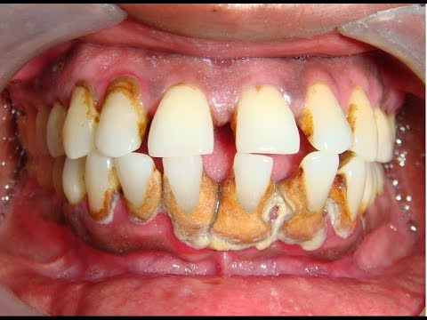 Plaque removed.. Extreme Dental Cleaning