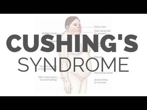 ✔ Cushing's Syndrome - MADE EASY