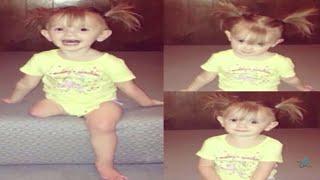 أصّر الأهل أن يقطعوا ساق ابنتهما رغم اعتراض الأطباء.. انظروا ما حدث لها بعد سنتين !!