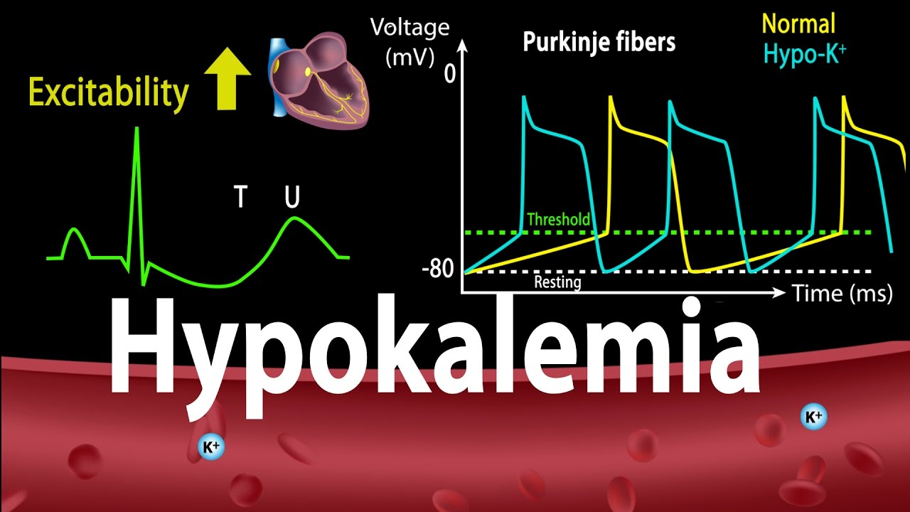 Causes and symptoms of hypokalemia