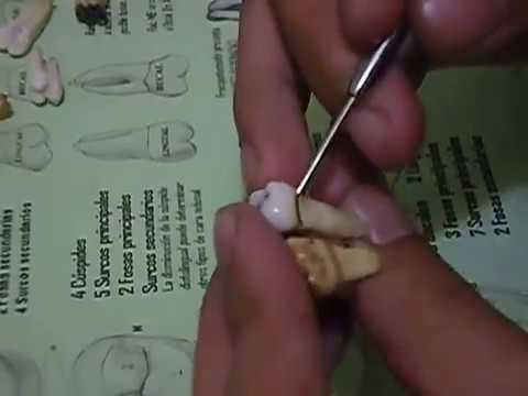 Reconocimiento de dientes  Molares Superiores  YouTube