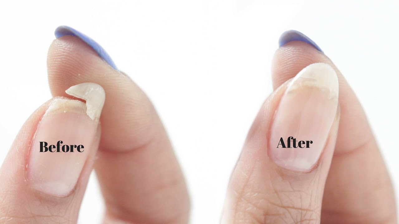 How To Fix A Broken Nail Fast With Four Easy Way