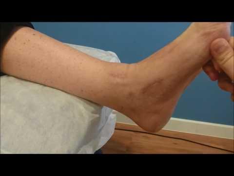 video rotura tendon tibial anterior - YouTube