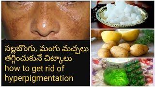 నల్లబొంగు/మంగు మచ్చలు ఇంటి చిట్కాలు|How to get rid of hyperpigmentation.