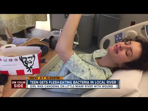 Teen nearly loses foot to flesh-eating bacteria after canoe trip on Little Miami River