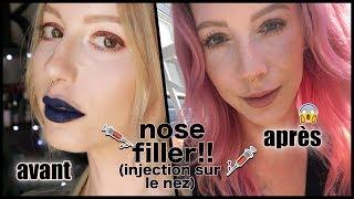 'Nose filler' mon expérience (photos avant/après), injection sur le nez | Kathleen Jobin
