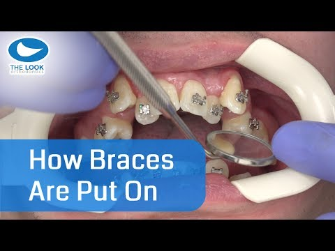 How braces are put on - AMAZING !