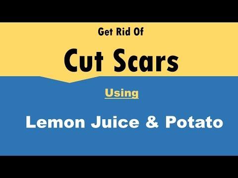 Get Rid Of Cut Scars With Lemon Juice & Potato