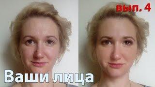 Коррекция асимметрии глаз, когда одно веко нависшее | Ваши лица, вып. 4