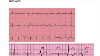 LVH, RVH (left ventricular & right ventricular hypertrophy) EKG criteria