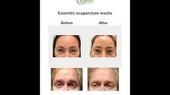 Kosmeettinen akupunktio 2