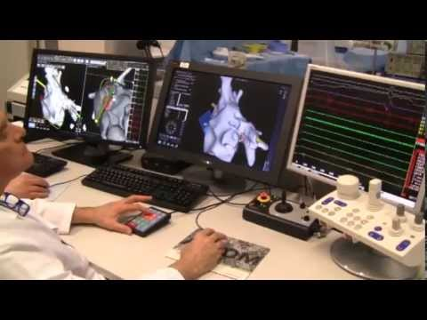 Sistema di navigazione magnetica remota niobe stereotaxis