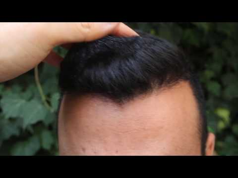 Rogaine Before And After Hairline Clinic Fue Experts