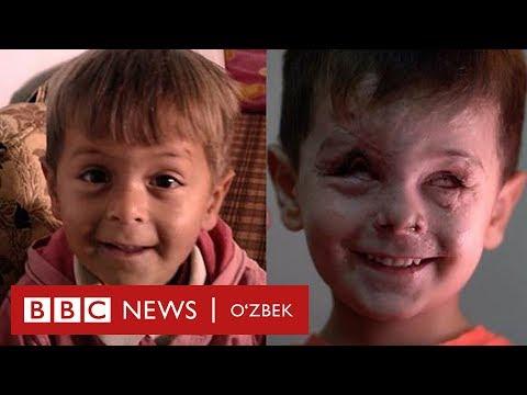 Сурия уруши қурбонининг мурғак юзи - BBC Uzbek