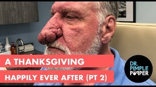 A Thanksgiving Happily Ever After (Part 2)