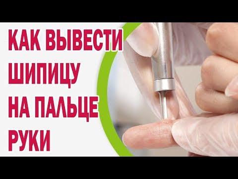 Как вывести шипицу на пальце руки в домашних условиях видео