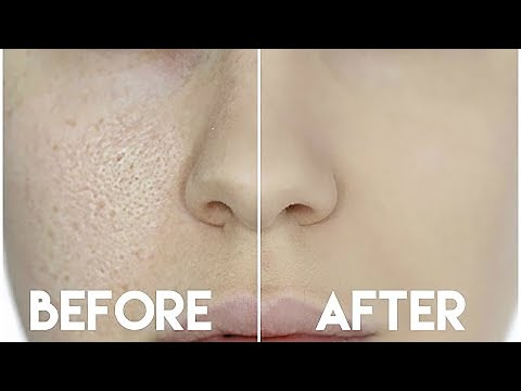 HOW TO HIDE ENLARGED PORES & MAKE YOUR PORES DISAPPEAR!