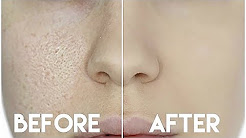 hqdefault - Best Makeup To Hide Acne And Pores