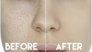 One of Nikkia Joy's most viewed videos: HOW TO HIDE ENLARGED PORES & MAKE YOUR PORES DISAPPEAR!