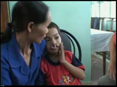 Operation Smile: Thanh's Story