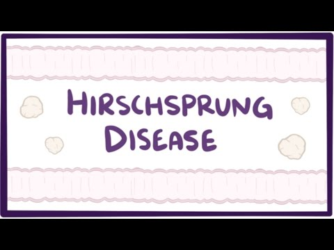 Hirschsprung disease (congenital aganglionic megacolon) - causes & symptoms