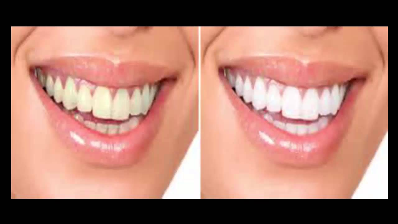 Professional Teeth Whitening Before And After Youtube