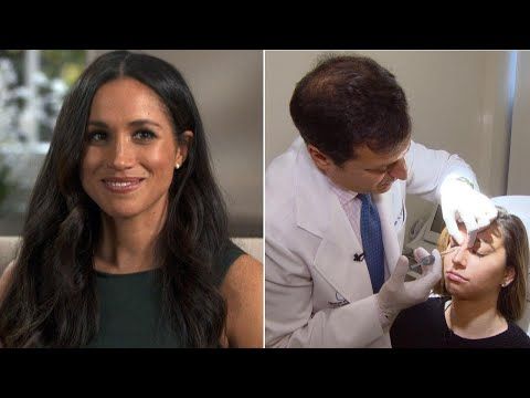 How to Get Meghan Markle's Nose