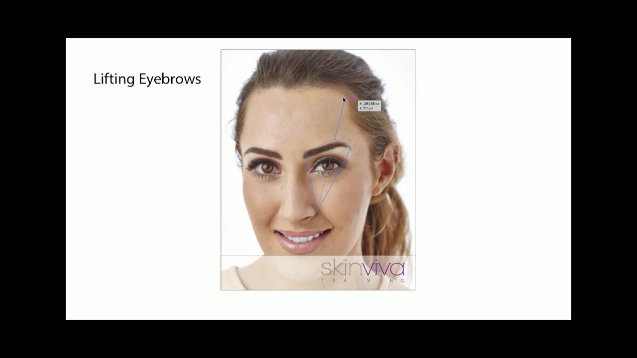 Botox Eyebrow Lift Strategy - avoiding brow drops and spock brows