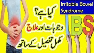 Health Tips || What Is IBS Irritable Bowel Syndrome , Causes And Treatment At Home In Urdu Hindi
