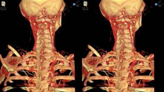 Spine Fracture - 3D Virtual Tour | UCLA Neurosurgery