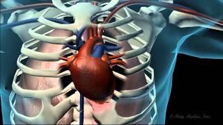 Coronary Artery Disease Health Promo