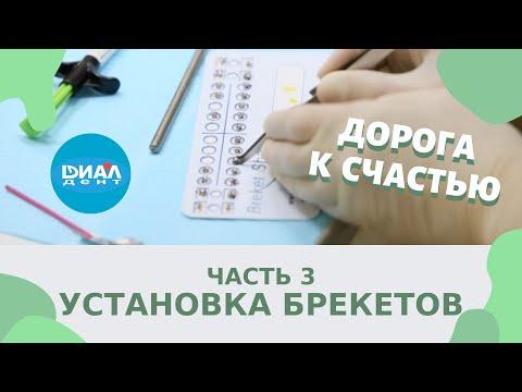 Установка брекетов, чистка зубов - третья серия проекта Дорога к счастью.