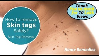 Top 16 Natural Methods to Remove Skin Tags (WARTS) at Home