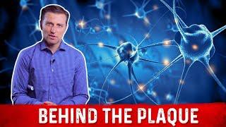 Behind the Plaque - in Arteries, Brain, Joints & Teeth