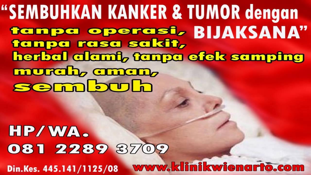 Penyebab Kanker Serviks atau Kanker Mulut Rahim - YouTube