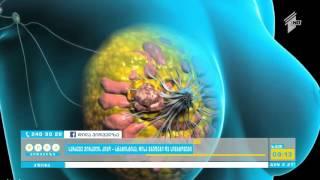როგორია სარძევე ჯირკვლის სიმსივნის სტატისტიკა - რისკ ჯგუფები და დაავადების პრევენცია