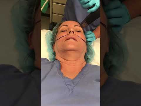 Morpheus 8 Treatment | Microneedling with Radiofrequency