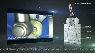 Minimally invasive preparation with HyFlex™ EDM 10/.05 Glidepath File