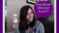 hqdefault - Does Breast Milk Cure Acne