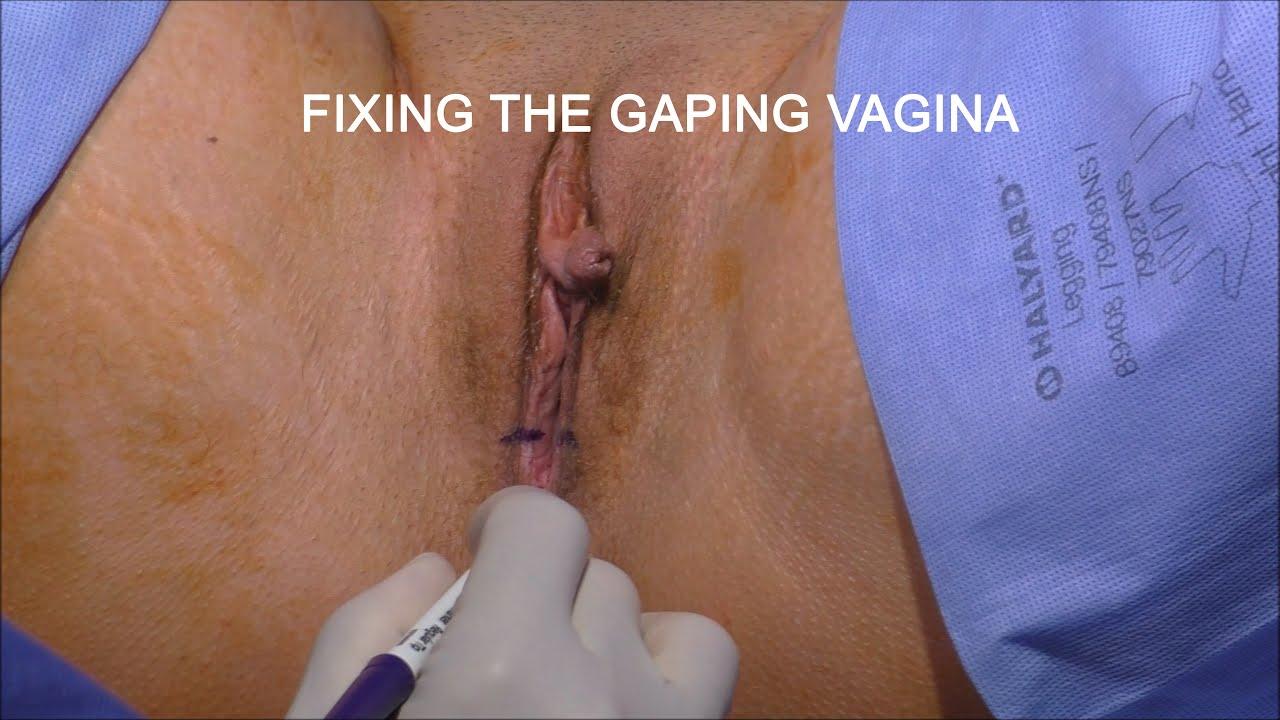 Anterior and posterior repair