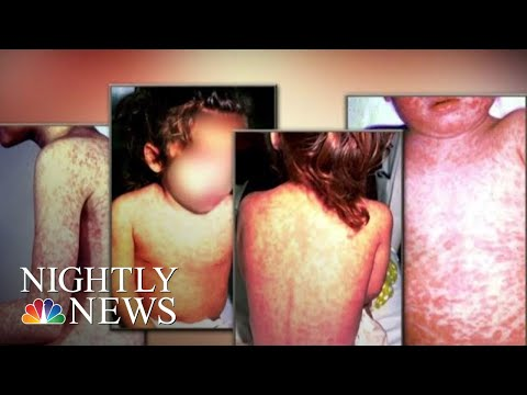 Public Health Emergency Issued After Measles Outbreak In Washington State | NBC Nightly News