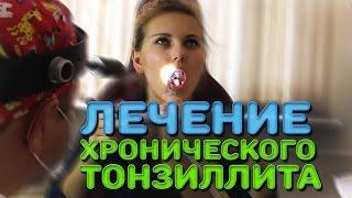 Лечение хронического тонзиллита | Лечим правильно с Владимиром Зайцевым