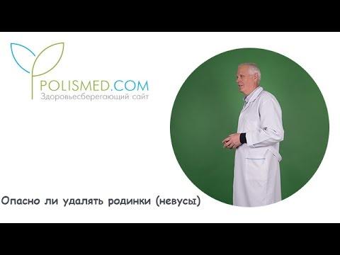 Невус - описание, лечение.