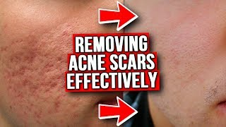 GET RID OF ACNE SCARS (FROM EXPERIENCE)