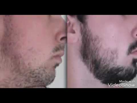 Before And After Of Beard Using Black Castor Oil Youtube