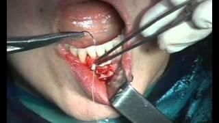 НРТ в области передних зубов(Операция направленной тканевой регенерации в области нижних фронтальных зубов с применением остеопластич..., 2013-01-24T13:43:10.000Z)