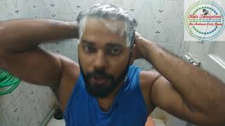 Shampoo to Remove Dandruff - World Best Shampoo