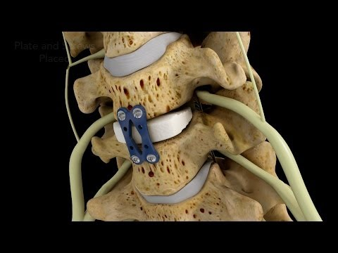 C4-5 Anterior Cervical Diskectomy with Fusion